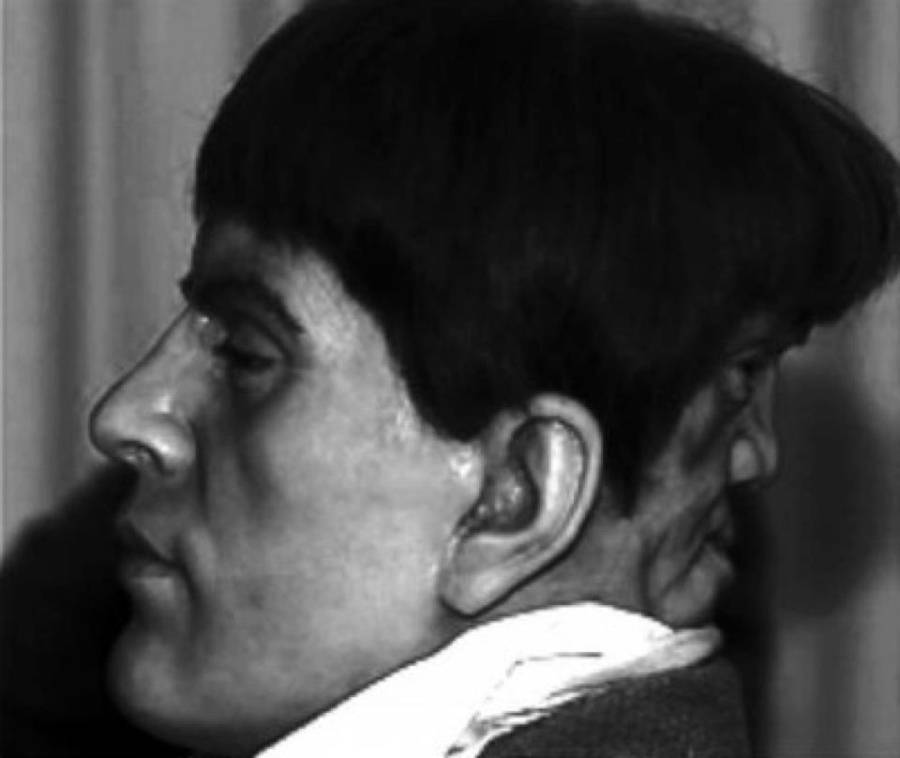 "Photo of Edward Mordake the man who lived with ""two-faces"" in the 19th century"